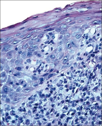 Figure 8: Oral lichenoid dysplasia. Epithelium showing cellular and nuclear atypia (H and E, ×40)