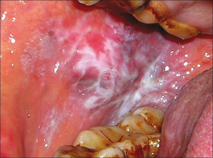 Figure 1: Bilateral reticular form of oral lichen planus