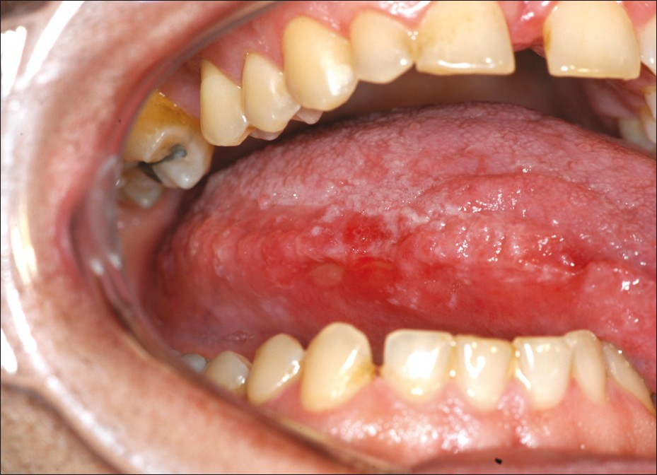 red patch on tongue tip