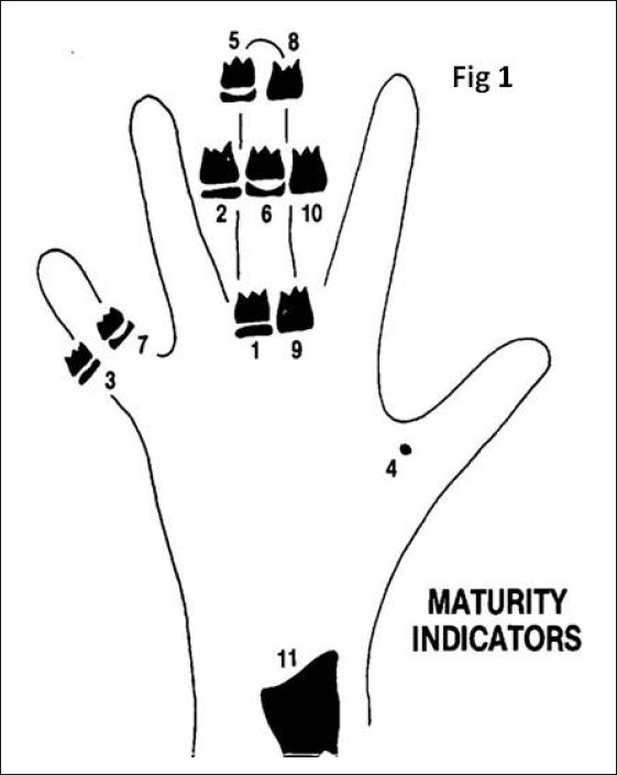 relationship of dental and skeletal radiography maturity indicator