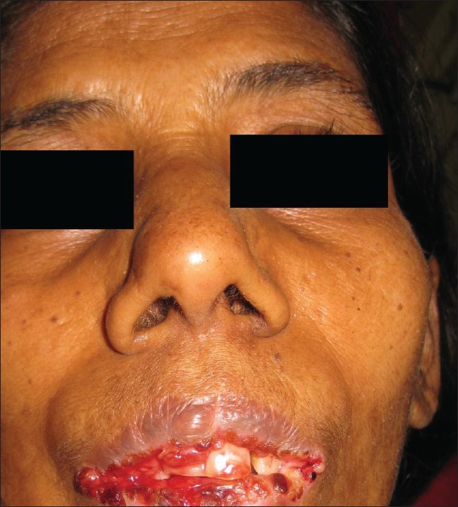 Figure 1: Image showing the lesion on the lip