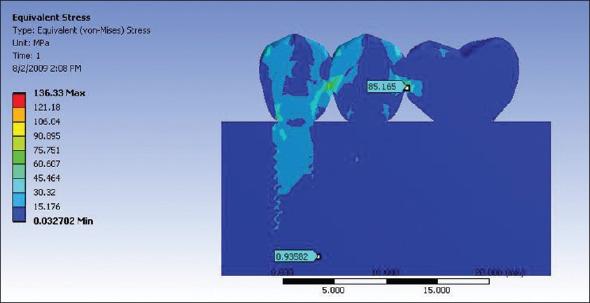 Figure 9: Analysis of three-unit cantilever with one-piece implant as primary abutment and two-piece implant as secondary abutment (model D)