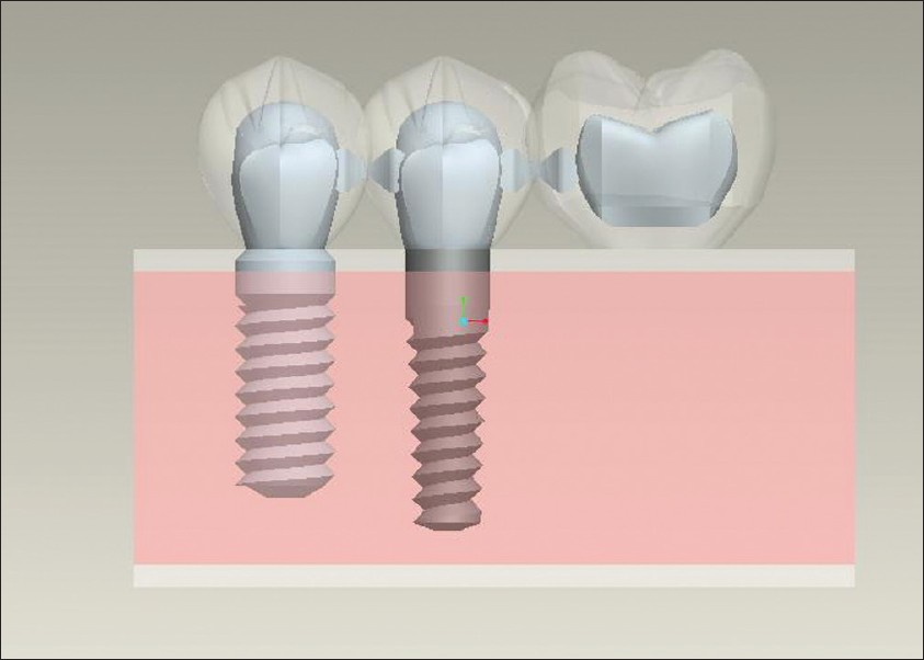 The Effect Of Implant Design On The Stress Distribution In
