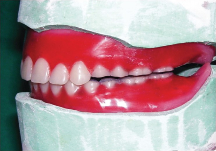 complete dentures from planning to problem solving