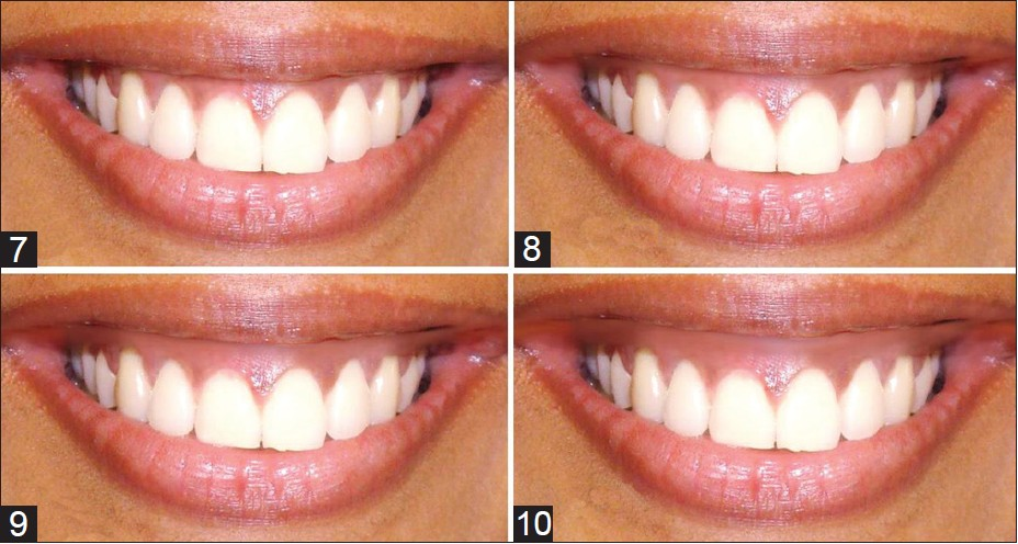 Perception Of Smile Esthetics Among Indian Dental Professionals And