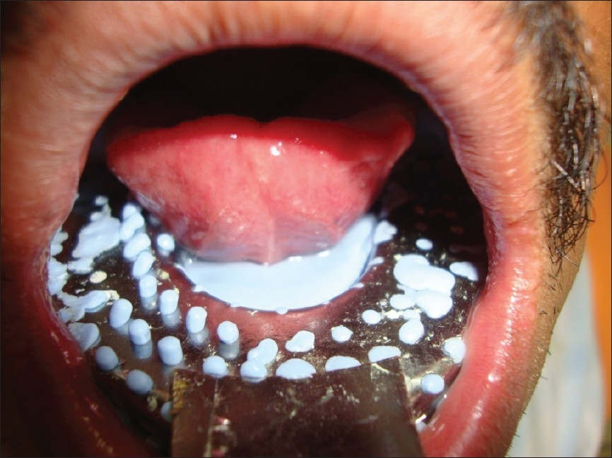 Image gallery sublingual cancer for Floor of mouth cancer