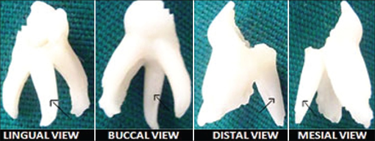 Figure 3: Photographs of extracted primary mandibular left first molar with additional root (arrow) taken from different angles