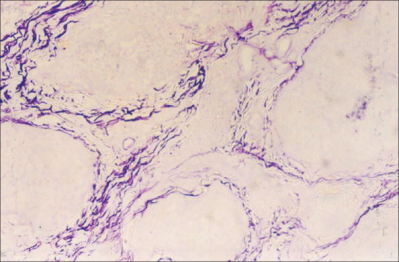 Figure 10: Histopathological section revealing fibrillar connective tissue positive for aldehyda fuchsin; Aldehyde fuchsin-alcian blue stain, 40x