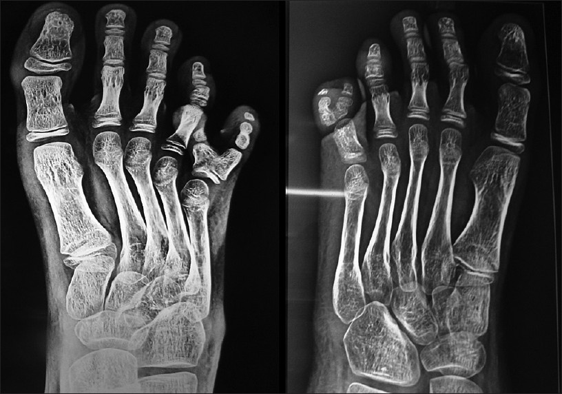 Figure 8: Radiograph of foot showing extra phalanges on both feet