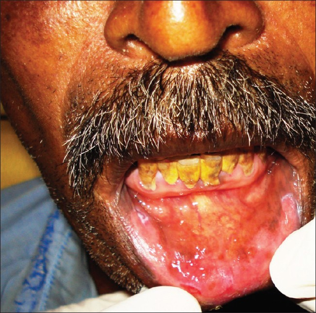 oral manifestations of syphilis Syphilis from oral bobbopcr dear all, i have read a zillion posts regarding getting syphilis from oral receiving as a man and i know that the chances are miniscule, but the chances are there.