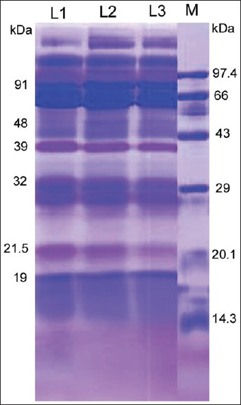 Figure 3: One-dimensional electrophoresis of salivary protein during menstrual cycle. M, marker; L1, pre-ovulatory phase (6-12 days); L2, ovulatory phase (13-14 days); and L3, post-ovulatory phase (15-26 days)