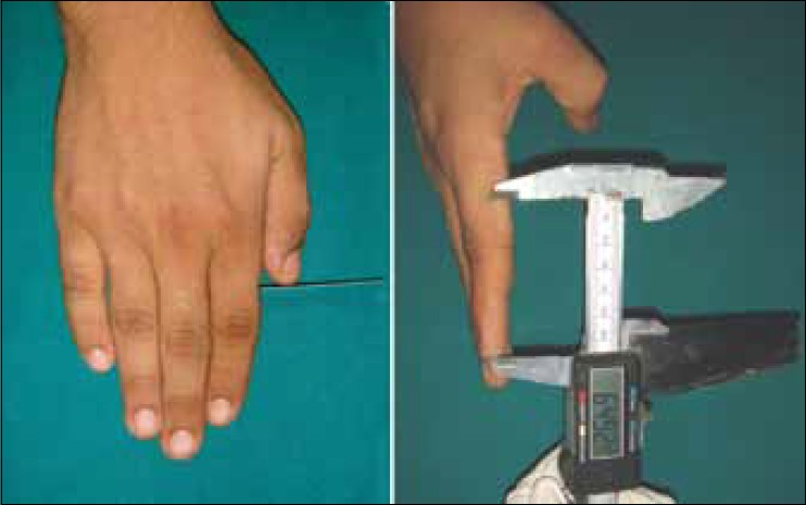 Figure 4: Measurement of distance from tip of index finger to tip of thumb