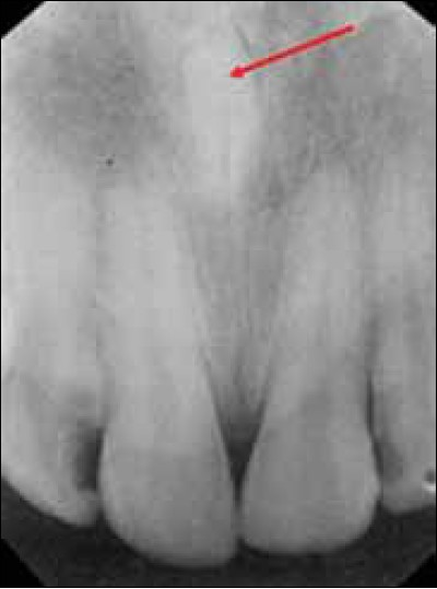 Figure 4: A mesiodens between upper two central incisors, that is, β1mγ1