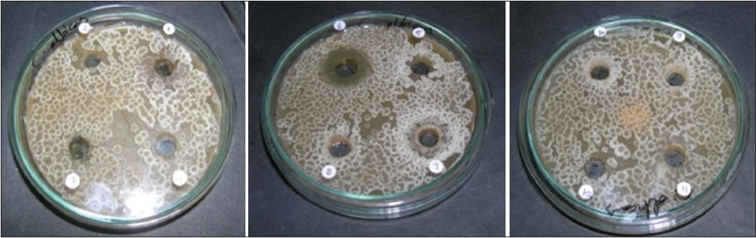 exploring of antibacterial and antifungal activity Please select whether you prefer to view the mdpi pages with a  for exploring and  of antibacterial and antifungal activities of the.