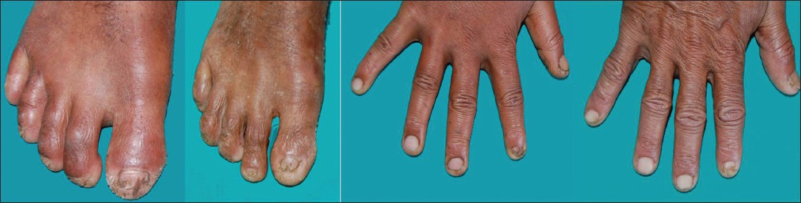 Figure 6 Nail Abnormality