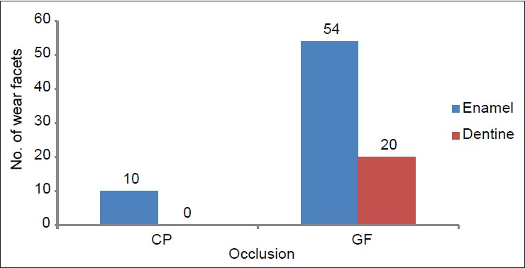 Figure 3: Distribution of the extent of wear facets in occlusion in the age group 18-25 years