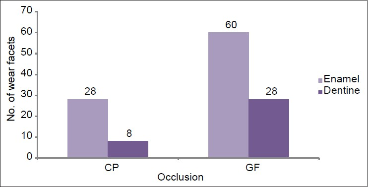 Figure 4: Distribution of the extent of wear facets in occlusion in the age group 26-35 years