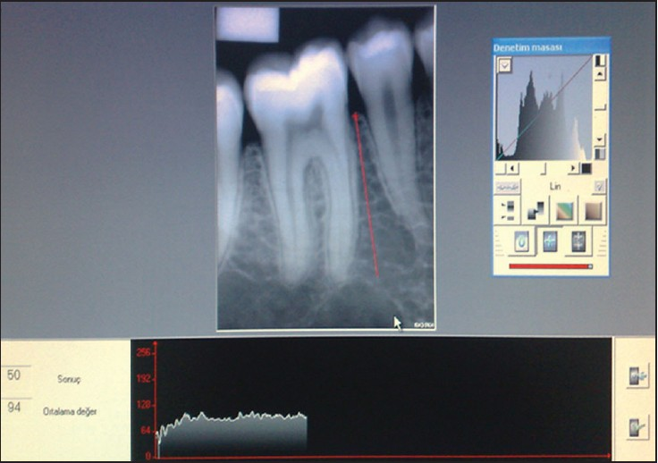 radiological analysis of the relationship between occlusal
