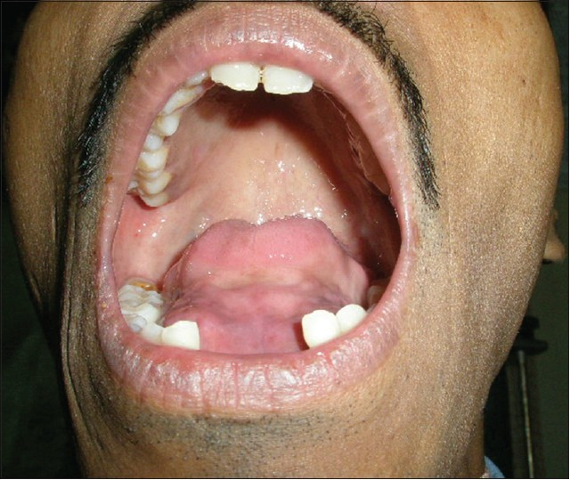 Unusual Complication Of Dental Extraction Lingual Abscess Varghese