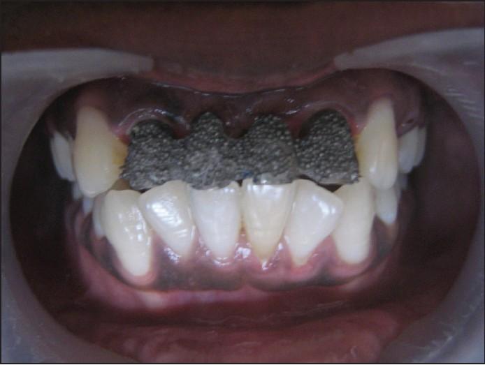 Indian Journal of Dental Nasal Myiasis