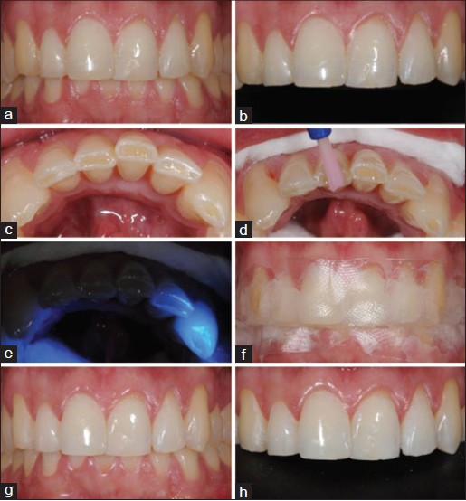 Figure 1: Sequence of clinical procedures for dental bleaching with the product Opalescence Trèswhite Supreme (a) Before dental bleaching (b) Maxillary incisors and canines before dental bleaching(c) Mandibular incisors and canines with exposed incisal dentin (d) Protection of exposed incisal dentin with self-etching adhesive system (All Bond SE – Bisco) (e) Polymerization of self-etching adhesive system (f) Application of 10% hydrogen peroxide (Opalescence Tréswhite – Ultradent Products, Inc., South Jordan, USA) (g) and (h) After 8 dental bleaching applications