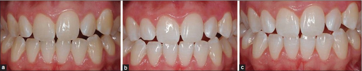 Figure 2: Clinical case presenting the tooth colors before (a), immediately after (b) and 6 months (c) after dental bleaching with 10% hydrogen peroxide (Opalescence Tréswhite – Ultradent Products, Inc., South Jordan, USA)