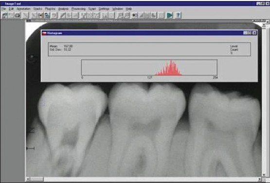 Figure 3: Gray level analysis of radiograph 10 before the demineralization process (GL =141)