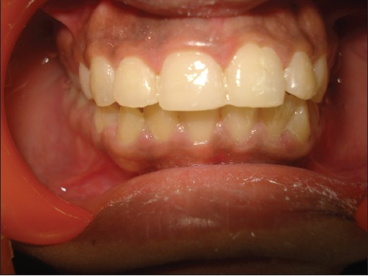 Figure 2: Post-treatment view after restoration with composite