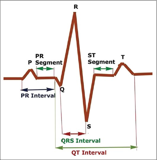Drawing Lines With Qt : The ecg made easy for dental practitioner anoop u r