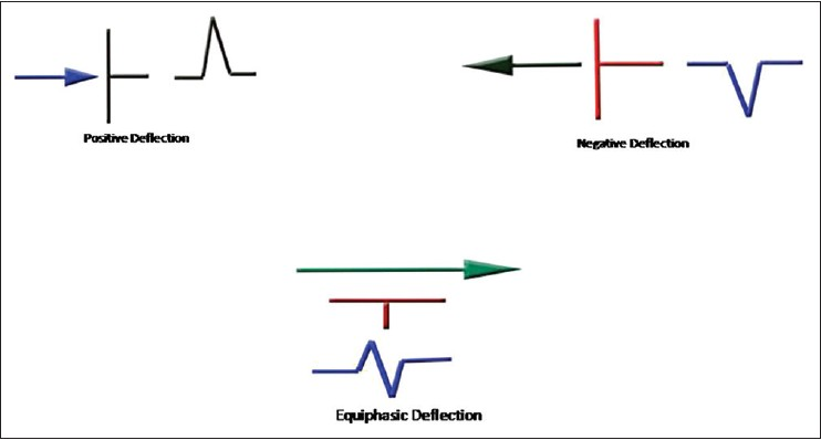 Figure 2: Direction of deflection based on flow