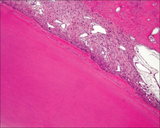 Figure 3: Histological photograph features of the experimental root surface with periodontal connective tissues and orientation of collagen fibers (Dog 1, teeth 21- Group A). (HE ×40)