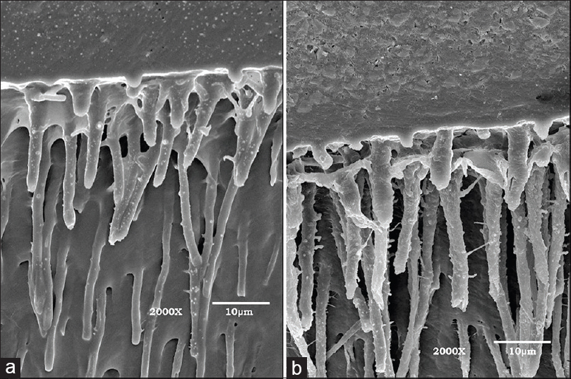 Figure 4: Scanning electron microscopy micrograph (×2000) of the sample. Dentin region treated with papain gel (a) and was not treated with papain gel (b)