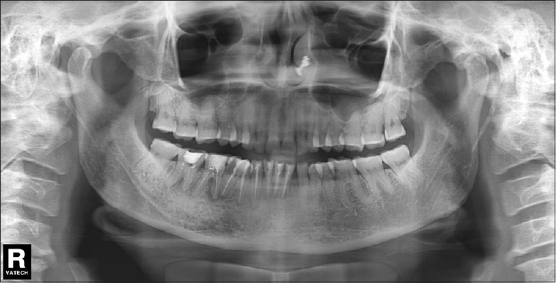 Figure 6: Panoramic radiograph showing adequately obturated root canals with periapical changes from 41 to 46 with blunting of root apex of 41-47 (case 2)