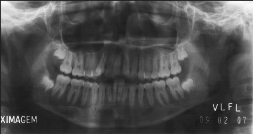 Figure 1: Panoramic radiograph