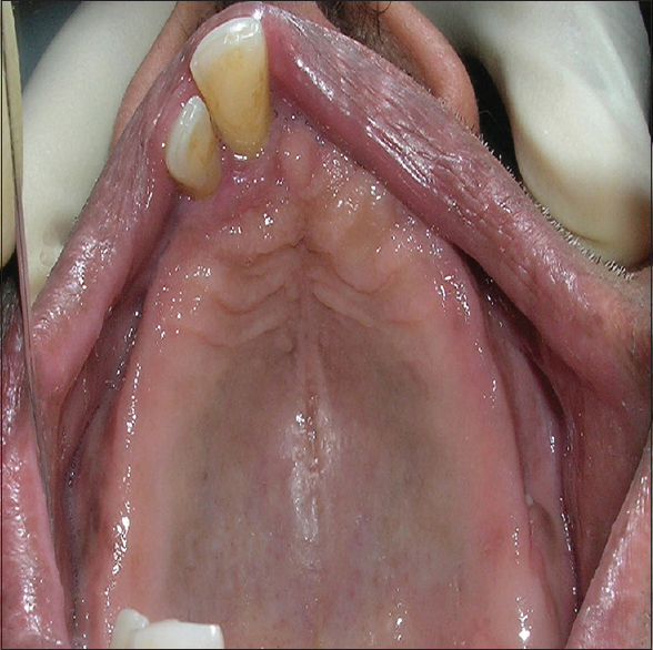 Figure 2: Occlusal view showing remaining maxillary teeth (mirror-image)
