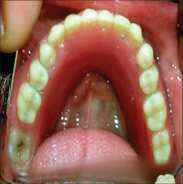 Figure 6: Intraoral occlusal view of mandibular denture (mirror-image)