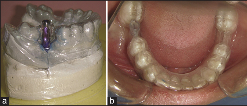 Figure 2: (a) Surgical template fabrication, (b) Intraoral view of surgical template