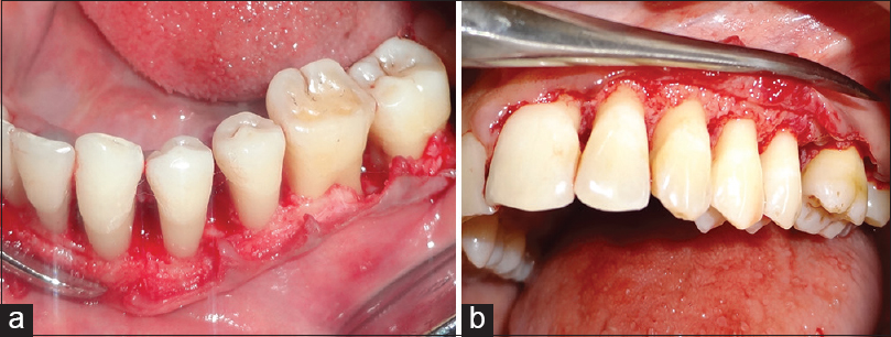 Figure 3: Post debridement in modified widman flap (a) using laser and (b) alone