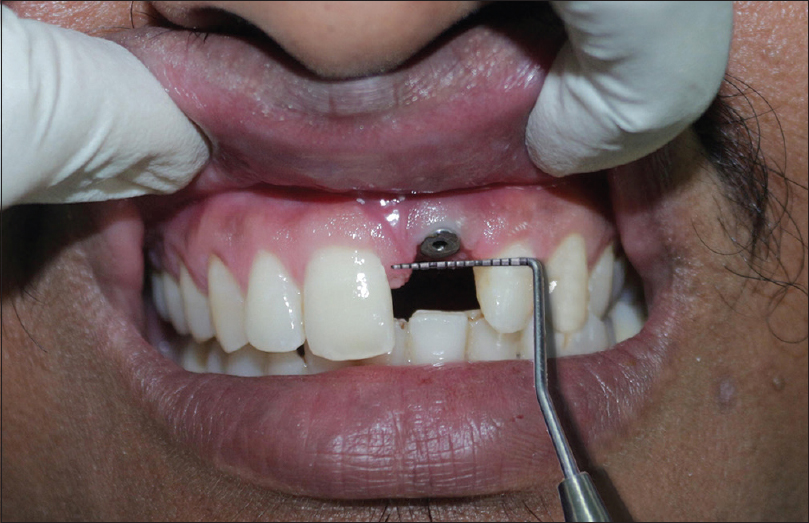 Figure 10: Distance between mesial and distal papilla with the University of North Carolina Probe-15