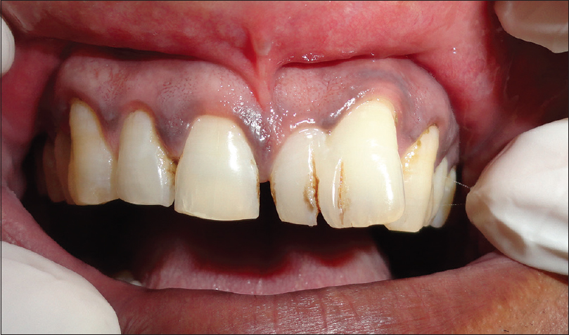 Dens Evaginatus And Dens Invaginatus In A Double Tooth A Rare Case