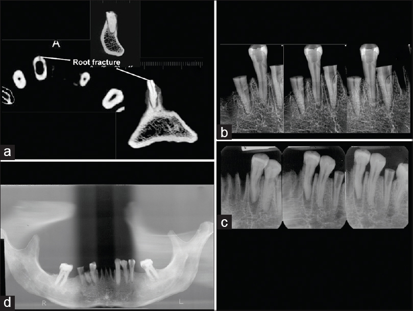 Comparison of diagnostic accuracy of root perforation, external ...