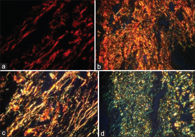 Figure 1: (a) Reddish-birefringence of collagen fibers in normal mucosa (PSR, photomicrograph 20×) (b) reddish-orange birefringence of collagen fibers in oral squamous cell carcinoma (PSR, photomicrograph 20×). (c) Yellowish-orange birefringence of collagen fibers in oral squamous cell carcinoma (PSR, photomicrograph 20×). (d) Greenish-yellow birefringence of collagen fibers in oral squamous cell carcinoma (PSR, photomicrograph 20×)