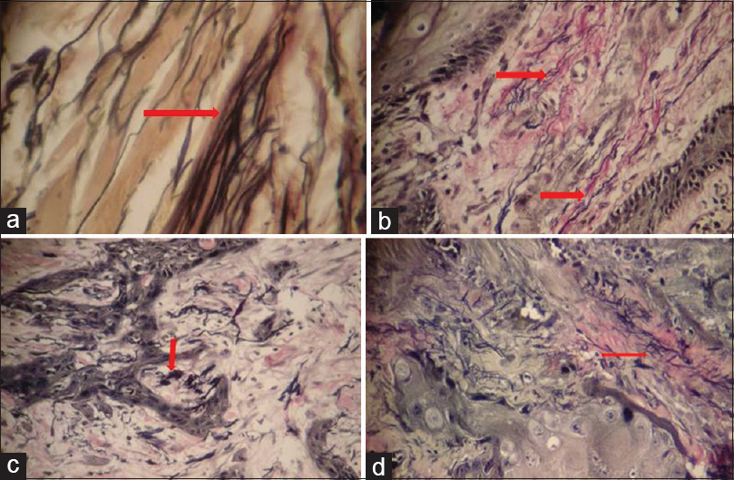 Figure 2: Elastic fibers are stained black. (a) Elastic fiber morphology in normal mucosa long fibers (VVG, photomicrograph 20×). (b) Elastic fiber morphology in oral squamous cell carcinoma - long fibers adjacent to tumor islands (VVG, photomicrograph 20×). (c) Elastic fiber morphology in oral squamous cell carcinoma - clumped elastic fibers adjacent to tumor islands (VVG, photomicrograph 20×). (d) Elastic fiber morphology in oral squamous cell carcinoma - fragmented elastic fibers adjacent to tumor islands (VVG, photomicrograph 20×)