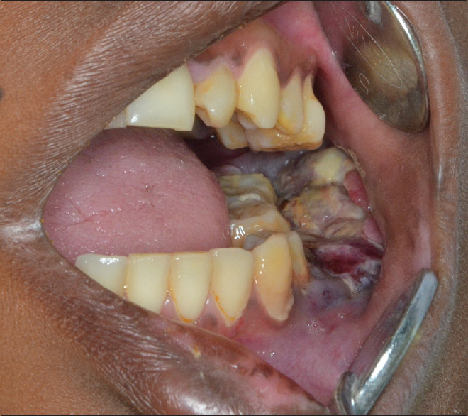 Figure 3: Intraoral picture showing the proliferative growth in the lower left vestibule