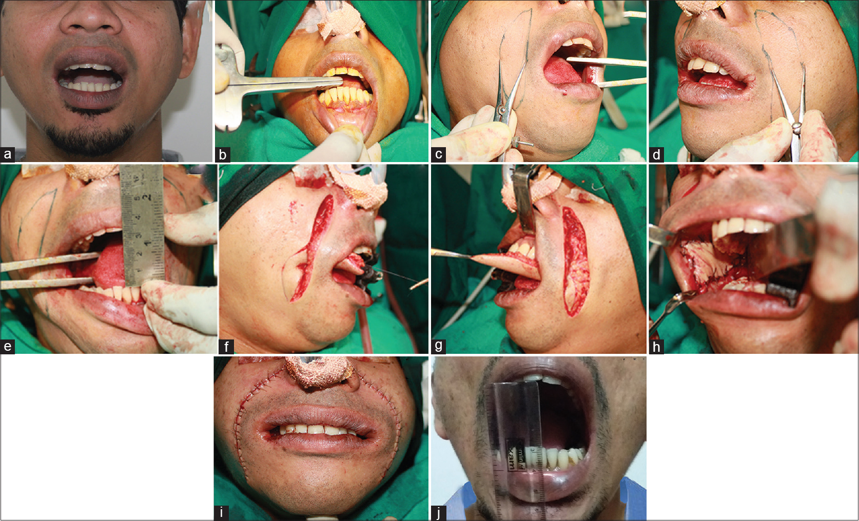 Figure 1: (a) Preoperative mouth opening, (b) intraoperative mouth opening before surgery, (c and d) marking of bilateral nasolabial flap, (e) increase in mouth opening after lease of fibrotic bands, (f and g) nasolabial flap transfer bilaterally, (h) intraoral suturing of flap, (i) primary closure, (j) postoperative increase in significant mouth opening