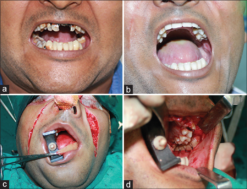 Figure 2: (a) Preoperative mouth opening, (b) marking of bilateral nasolabial flap, (c) intraoral suturing of flap, (d) postoperative increase in significant mouth opening