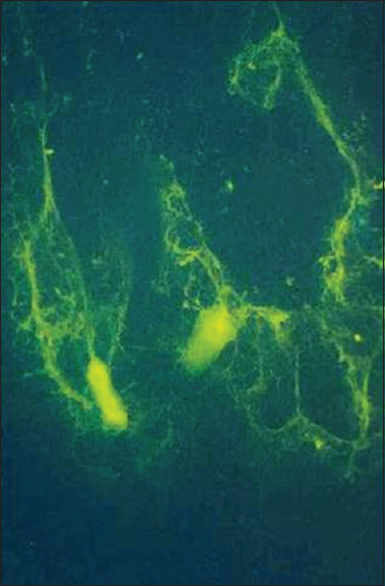 Fluorescence of <i>Candida</i> in diagnosis of oral candidiasis