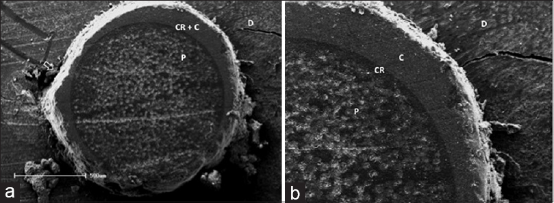 Figure�3: Scanning electron microscopy images representative of failure patterns. A�mixed failure in the apical third of the maxillary central incisor of the resin cement Allcem can be seen at low�(a) and high magnification�(b). D�= dentin; <i>P</i>�=�post; C�=�resin cement; CR�=�composite resin used in reline