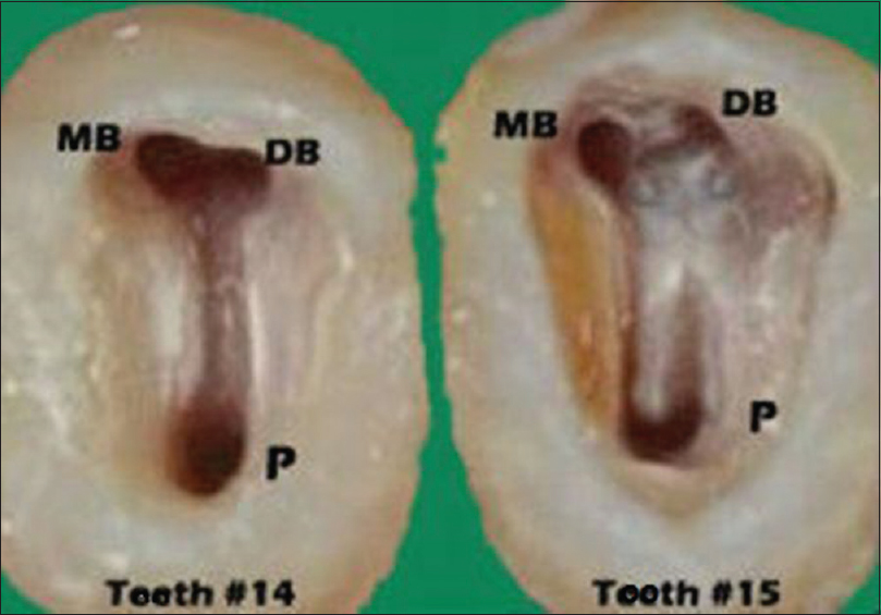 Report of occurrence and endodontic management of three-rooted ...