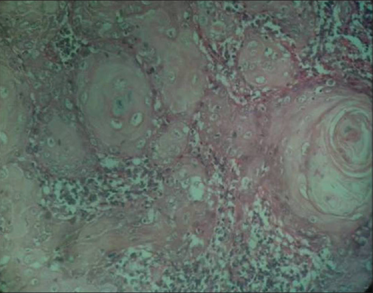 Figure 2: Photomicrographs of moderately differentiated oral squamous cell carcinoma (PSR stain, light microscopy, ×40)
